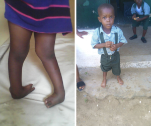 Bright before treatment and after, wearing his school uniform