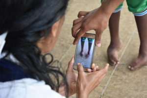 clinic staff use CAST mobile app to photogaph feet of Juldo who is living with neglected clubfoot