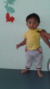Ianja after treatment, standing on corrected feet