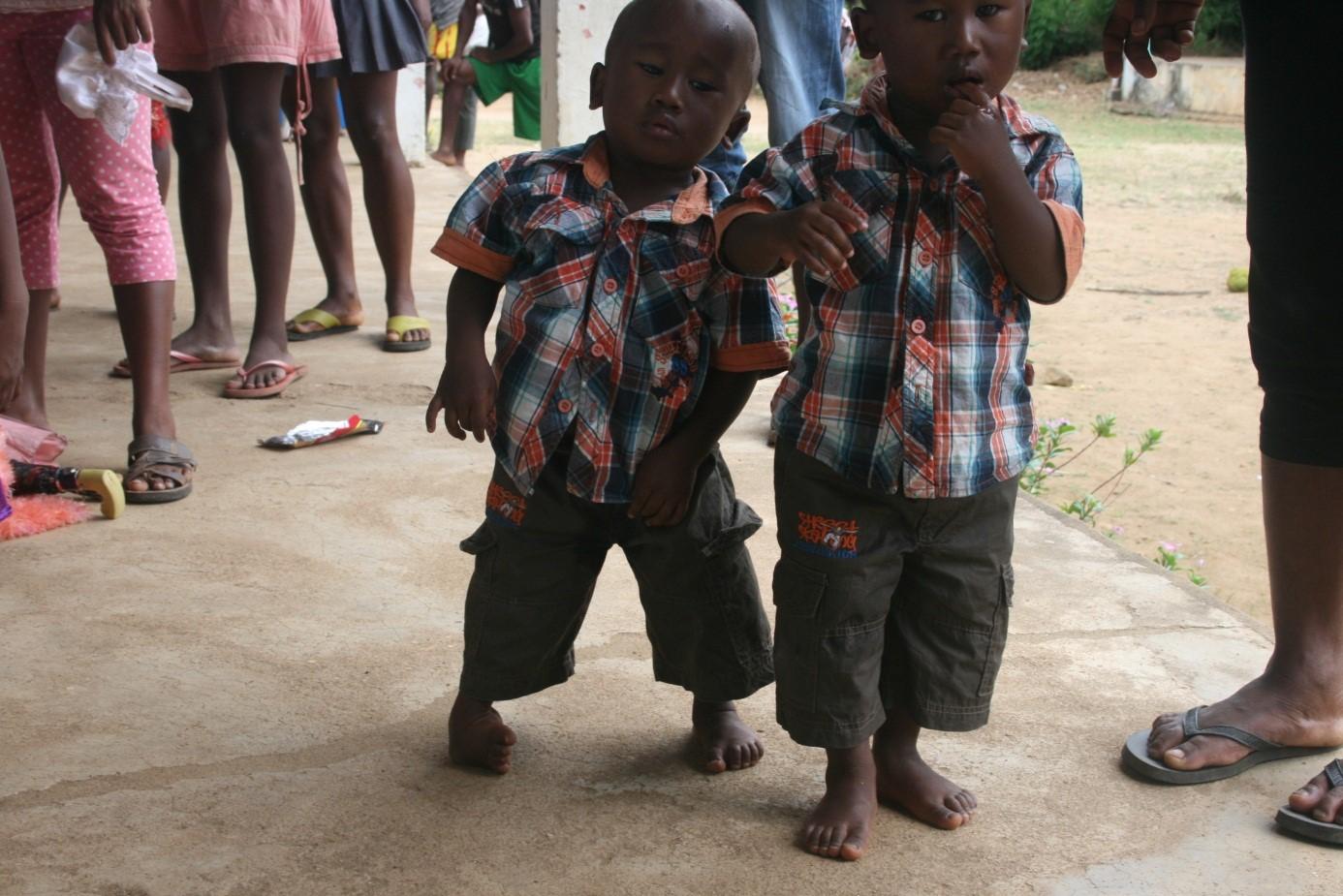 Clubfoot Madagascar