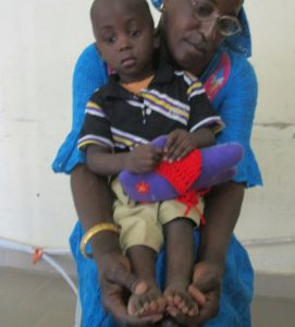 Modou on his mother's lap before treatment
