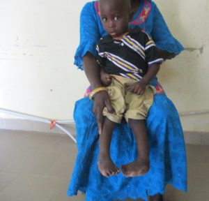 Modou on his mother's lap, before treatment