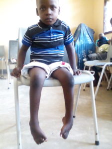 Joseph before treatment, seated in a chair at the clinic, his feet exhibiting symptoms of clubfoot
